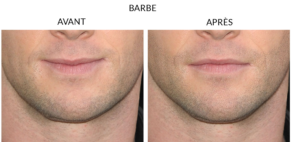 MicropigmentationCapillaire_Barbe