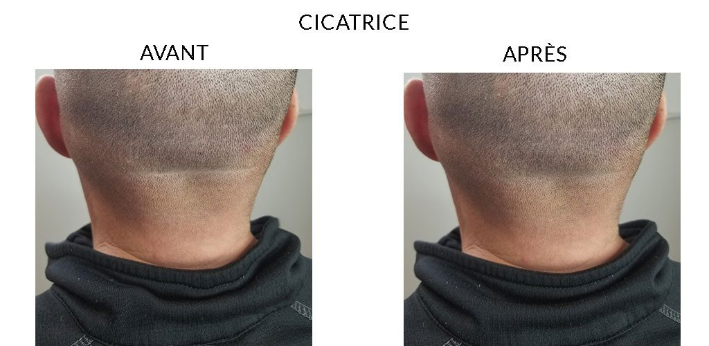 MicropigmentationCapillaire_Cicatrice